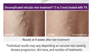 , Sclerotherapy
